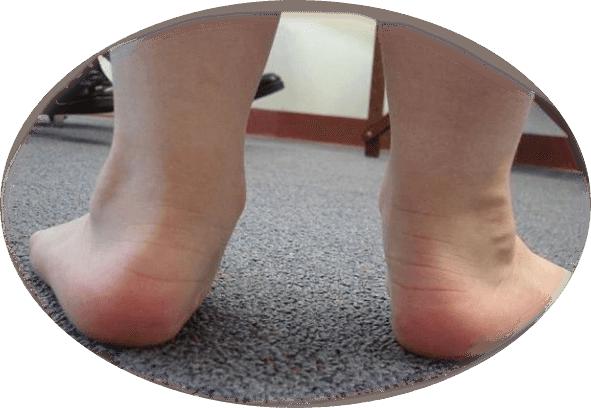 плосковальгусная стопа