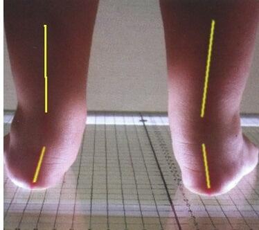 деформация ног у малышей