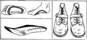 ортопедическая обувь при косолапии