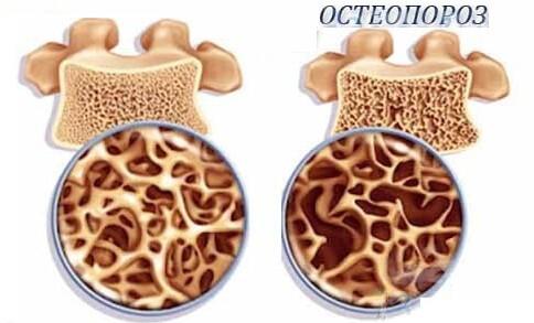 остеопароз последствия плоскостопия