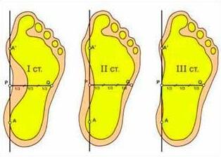 степени деформации стопы