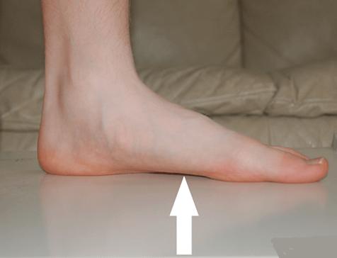симптомы плоскостопия