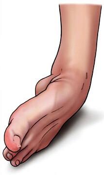 повреждение связок голени