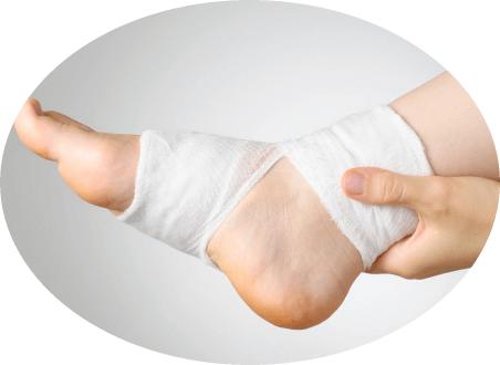 наложение повязки при вывихе ноги