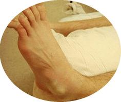 лечение вывиха голени дома
