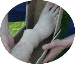 смещение при переломе лодыжки