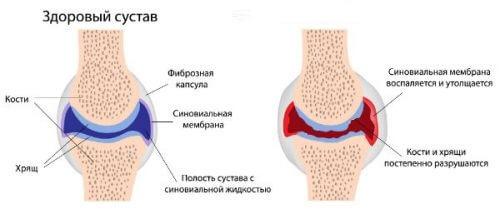 артрит причина потологии