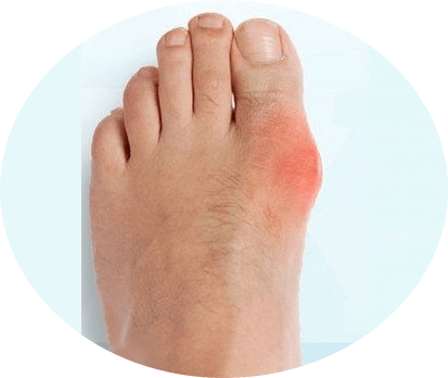 Косточка на большом пальце ноги лечение