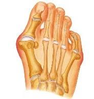 шишка на пальце ноги