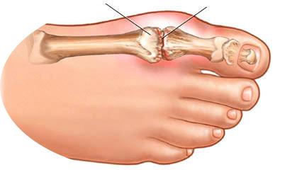 проблемы пальца ноги