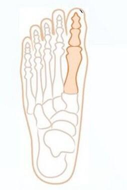 сустав большого пальца ноги