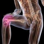 Артроз коленного сустава: первые симптомы, лечение, профилактика и диета