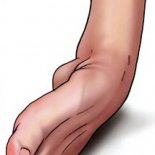 Что делать при повреждениях связки голеностопного сустава?