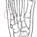 Лечение перелома пятой плюсневой кости стопы