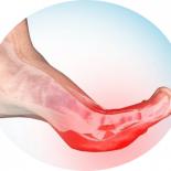 Почему сводит пальцы на ногах судорогой? Что делать?