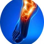 6 признаков для определения перелома стопы