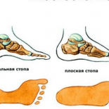 Что будет болеть, если у Вас плоскостопие?
