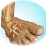 Реабилитация после перелома голеностопного сустава со смещением