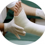 На сколько накладывается гипс при переломе лодыжки?