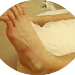 Домашнее лечение при вывихе голеностопа