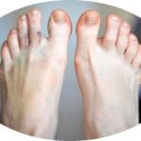 5 отличий ушибов от переломов пальцев ног