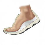 Выбор Обуви при плоскостопии— на что обратить внимание?