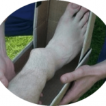 Сколько времени срастаются переломы лодыжки со смещением?