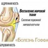 Причины и лечение болезни Гоффа коленного сустава