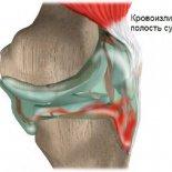 Что такое гемартроз коленного сустава, как его лечить и предотвратить?
