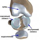 Восстановление повреждённого хряща коленного сустава