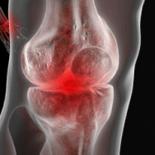 Виды и степени артрита коленного сустава