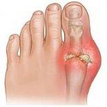 7 шагов лечения подагры на большых пальцах ног