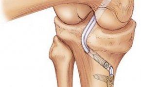 повреждения связок коленного сустава— хирургические способы лечения