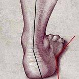 13 методов лечения вальгусной деформации стоп