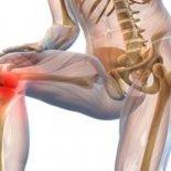 Диагностика и признаки анкилоза коленного сустава