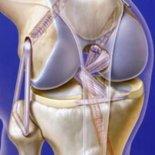 Особенности артродеза, некрэктомии и артролиза коленного сустава