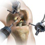 Восстановление коленного сустава после артроскопии