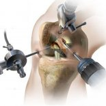 Реабилитация после артроскопии коленного сустава