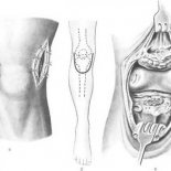 Особенности артротомии, остеомии и синэквэктомии коленного сустава