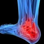 Причины и лечение остеоартроза голеностопного сустава