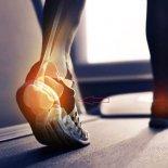 Лечение артроза стопы дома— народными средствами и медикаментами