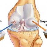 Болезнь, деформирующая суставы – полиостеоартроз