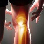 Схема лечения болей в коленях комплексными мерами