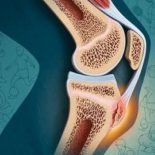 Как избавиться от шишки на колене?