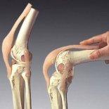 Лечение экзостоза коленного сустава