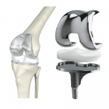 Все нюансы эндопротезирования коленного сустава