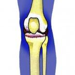 Причины боли в коленной чашечке, способы лечения и диагностики