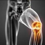 хруст в коленном суставе— причины и лечение