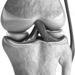 Восстановление после растяжения связок коленного сустава