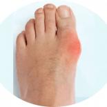 Боли в косточках на ногах около большого пальца
